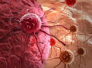 Экспериментальное лечение злокачественных опухолей 1-4 стадию